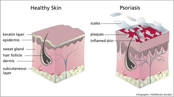 łuszczyca zdrowa skóra