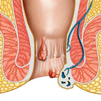 hemoroidy zewnętrzne i wewnętrzne