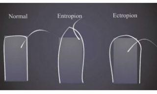 ektropion i entropion vs oko normalne