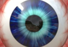 siatkówka oka